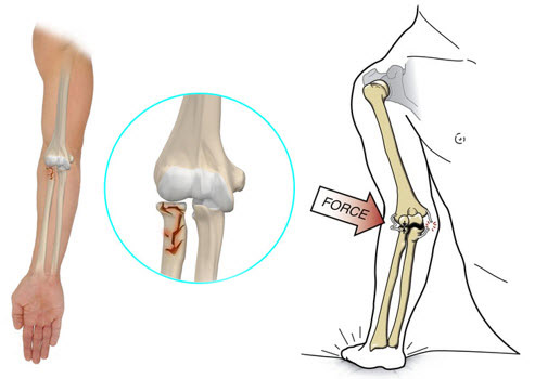 recenzii pentru tratamentul artritei gleznei