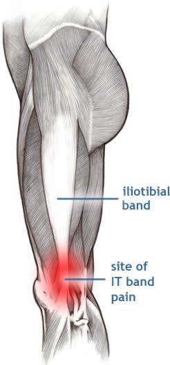 stavă de tratament articular tratamentul cu artroză a medicamentului tibetan