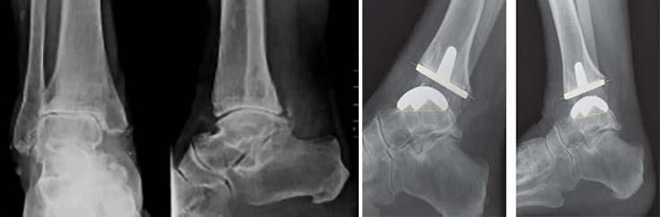 tratament eficient pentru artroza gleznei mușchii articulației genunchiului unei persoane rănite