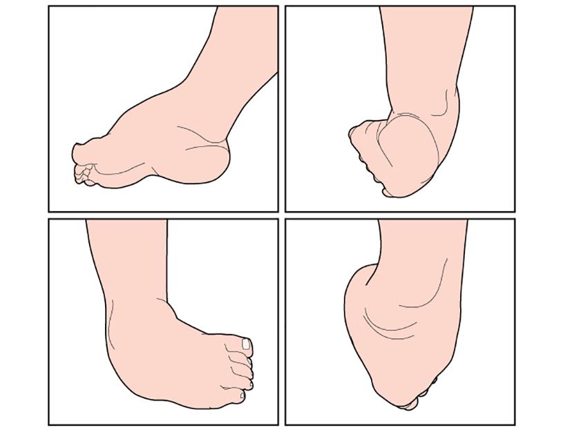tratamentul articulațiilor mici ale picioarelor tratamentul acut al durerii la genunchi