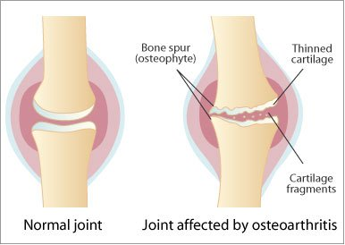 compoziția artrozei condroitinei