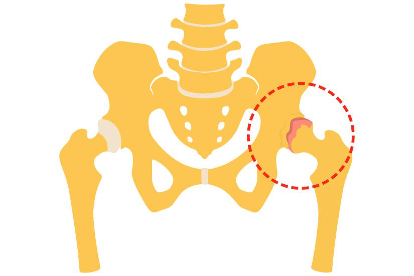 tratamentul conservator al articulațiilor șoldului