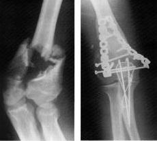 artroza primului tratament articular metatarsofalangian