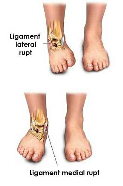 Tratamentul ligamentelor gleznei