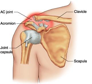 tratamentul ligamentezei umărului