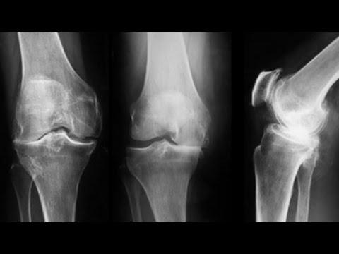 tratarea artrozei și artritei