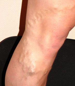dureri articulare dureroase