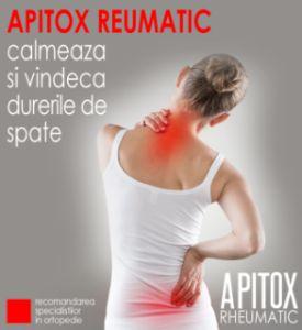 lipeste balsamul de gel condroitina glucozamina tratamentul complex al artrozei