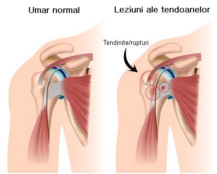 durere în zona toracică a articulației umărului