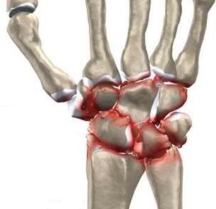 deteriorarea încheieturii și încheieturii leziuni la genunchi și la nivelul picioarelor inferioare