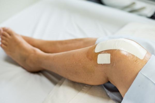 afectarea ligamentului cruciat al genunchiului