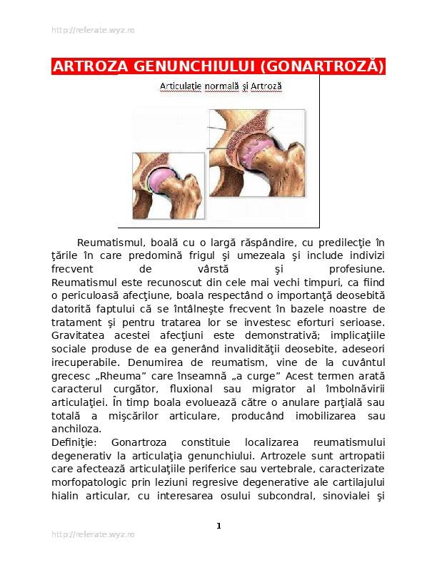 boală articulară mare Boală de şold