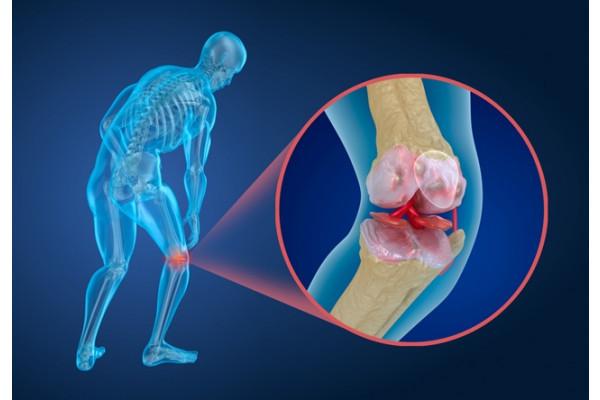 artroza simptomelor articulației genunchi de gradul 1