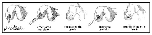 tratamentul osteonecrozei genunchiului tratament comun Artemovsk