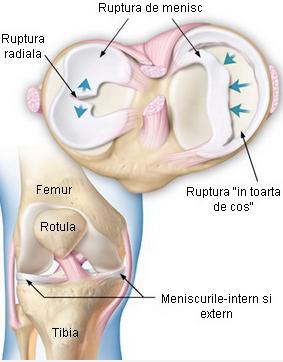 metan în tratamentul articulațiilor