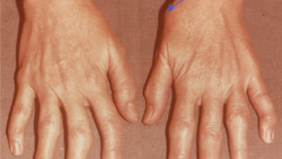 articulația genunchiului apare durere chiar sub articulația umărului