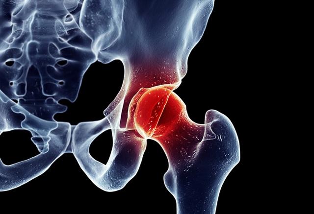 dureri de șold în poziție de șezut