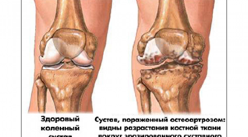 de ce durează articulația șoldului după somn ce infecție doare articulațiile din picioare