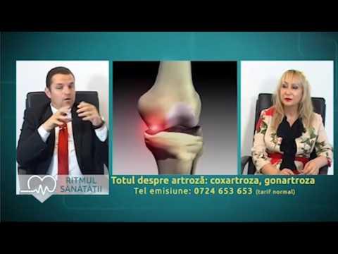 Tratamentul artrozei gâtului. Artroza – ce este, tratament si simptome
