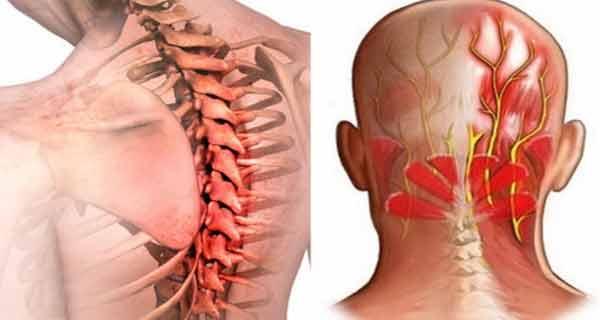 intepaturi in umarul drept cumpărați preparate de colagen pentru articulații