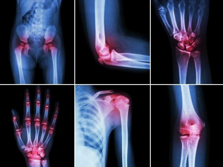 când te ridici la nivelul articulațiilor pentru durere în articulația șoldului ce examinare