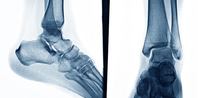 boli ale articulațiilor și oaselor picioarelor și tratament articulațiile se îndoaie cu durere