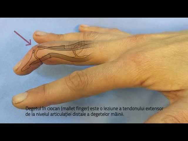 tratament eficient pentru artroza gleznei versuri pentru dureri articulare