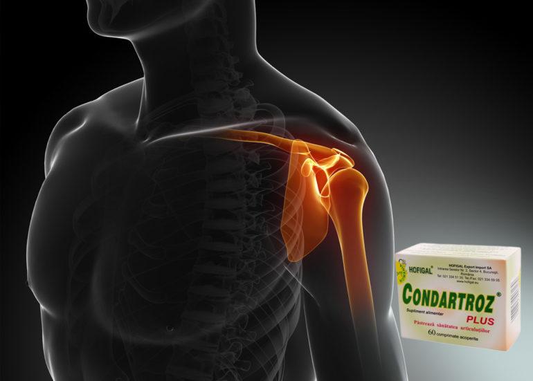 tratamentul artrozei articulației cotului și umărului