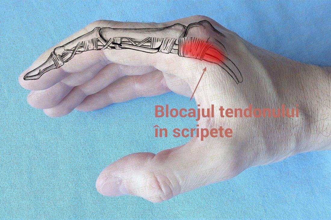 timpul de recuperare în comun apariția durerii articulare provoacă tratament