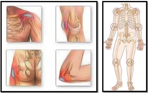 dureri la nivelul picioarelor după proteze ale genunchiului Unguent articular Solaris