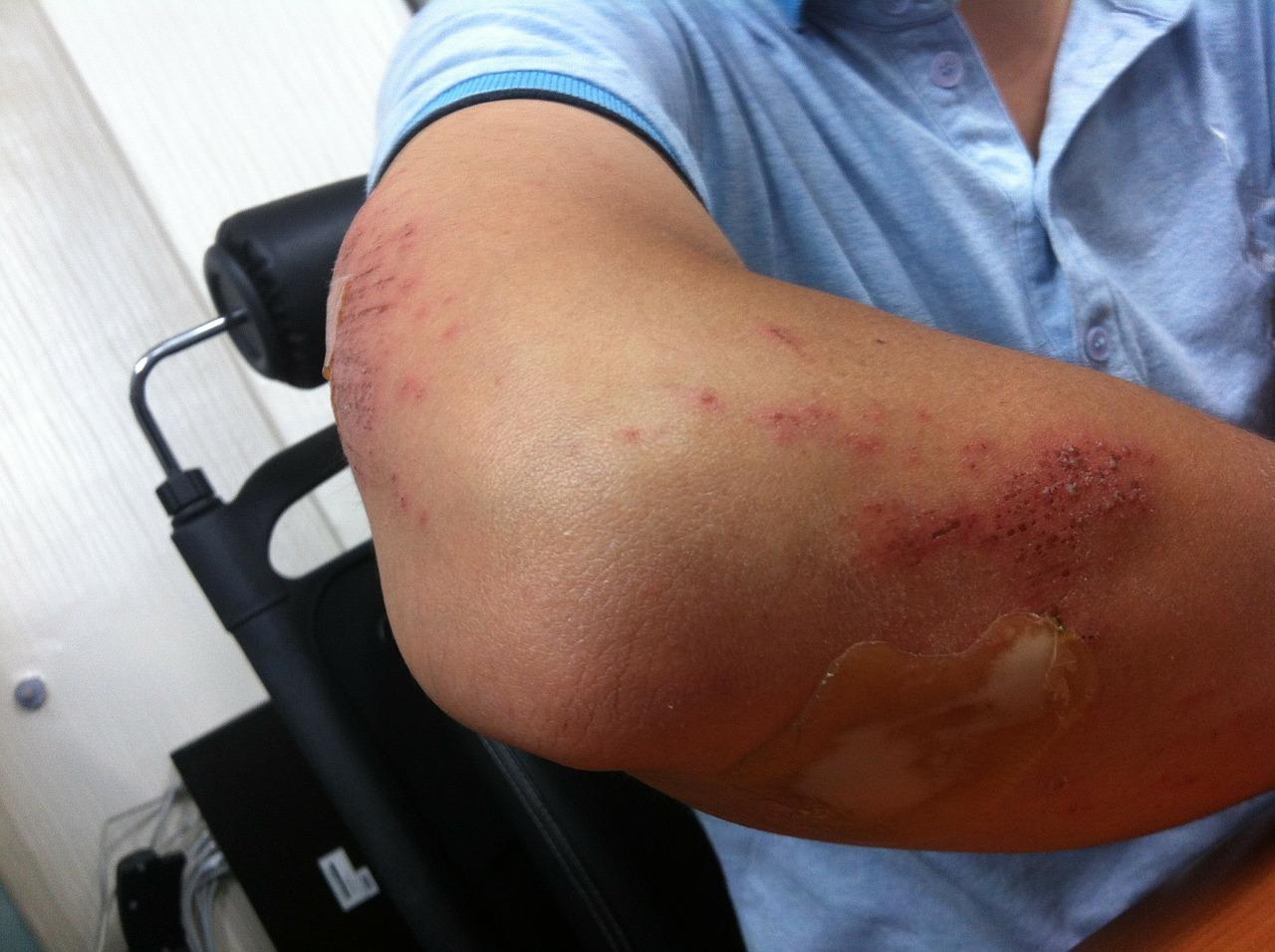 durere la bursita cotului artroză boli degenerative articulare