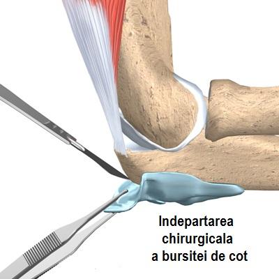 durere la bursita cotului ulei de pește durere articulară