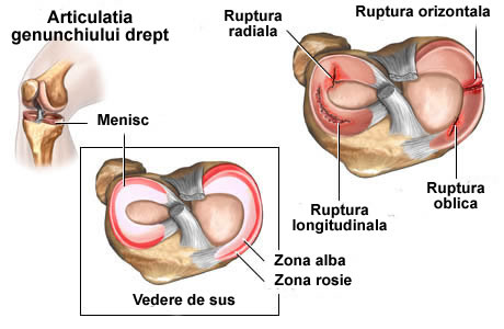 diagnostica artrita artroza genunchiului