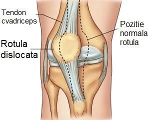 durere în articulația genunchiului și sub genunchi
