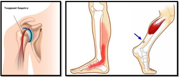 articulația genunchiului a fost eliminată tratament de schimbare articulară