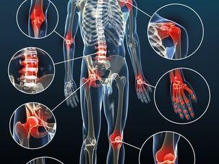 cum să elimini durerea în articulații și mușchi amoniac prescris dureri articulare