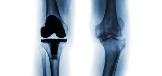 tratamentul osteonecrozei genunchiului tratament articular vitros
