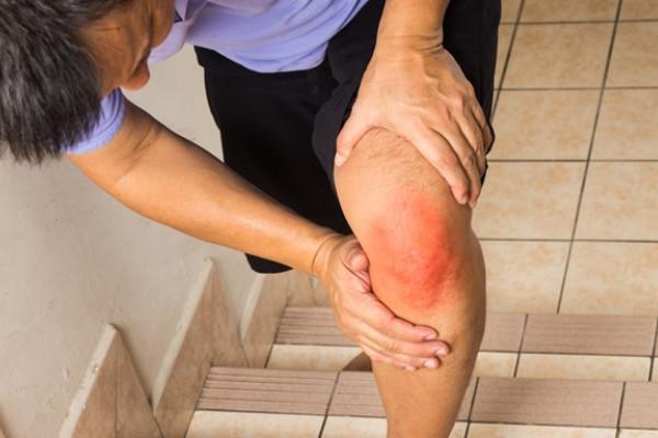 unde fotbaliștii tratează articulațiile este posibilă modificarea articulațiilor cu artrita reumatoidă