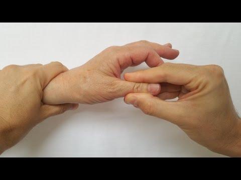 mecanism de inflamatie articulara