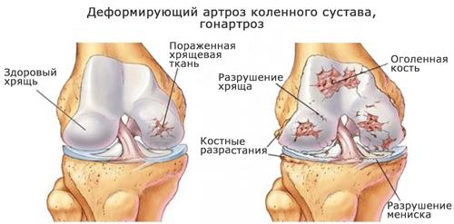 homeopatie în tratamentul artrozei genunchiului durerea în articulațiile genunchiului provoacă cine se vindecă