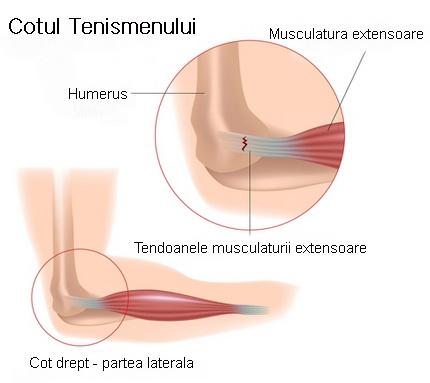 dureri la nivelul articulației interfalangiene proximale articulațiile sunt reci decât tratate