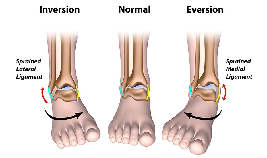 gimnastică pentru durere în articulația gleznei cu artroza articulației șoldului