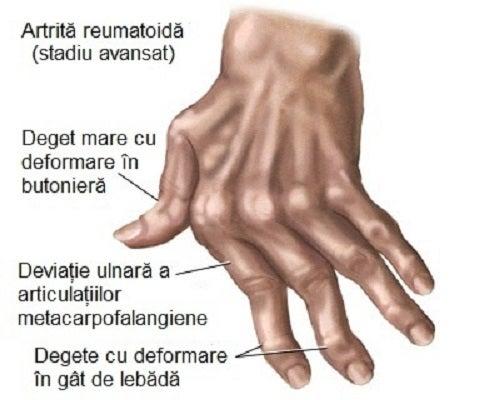 artrita artroza degetelor leziuni ale articulației cotului și a antebrațului