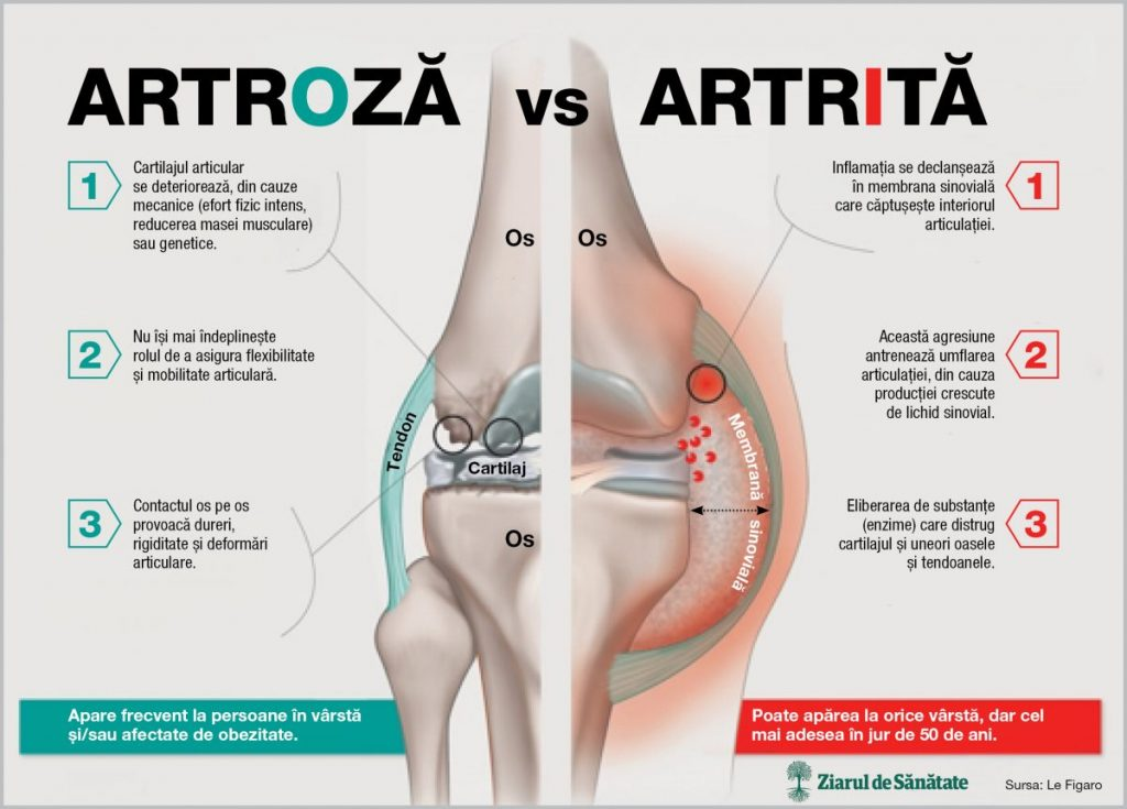 artrita pentru tratamentul artrozei