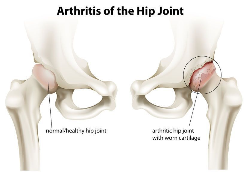 cum să fii tratat pentru artroza articulației șoldului pastilele ameliorează inflamațiile articulare