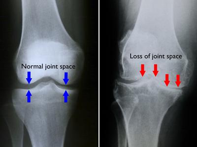 artroza gelului articulației genunchiului dureri severe la gleznă și călcâi