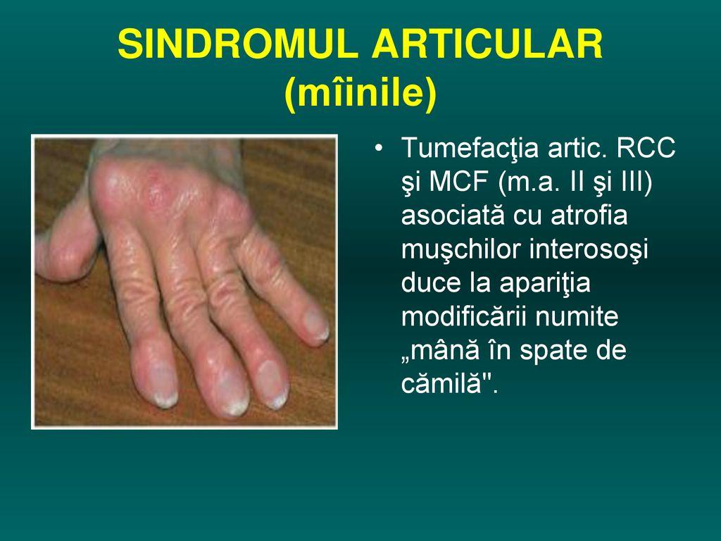 boală articulară simultană stoarcerea durerii articulare plie