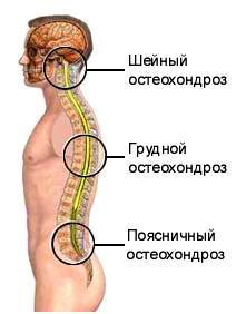 medicamente în tratamentul osteocondrozei coloanei vertebrale atlas de boli osoase și articulare