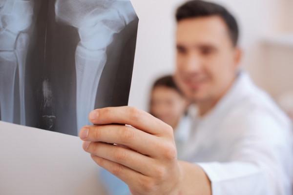 ce este artroza articulațiilor periei durere de ligamente la cotul mâinii drepte