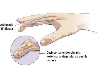 Umflarea gleznei fără durere provoacă tratament cremă de balsam pentru reparații articulare